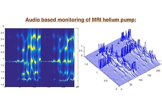 Audio Signal Evaluation of MRI Helium Pump
